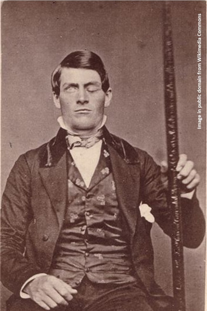Image of Phineas Gage